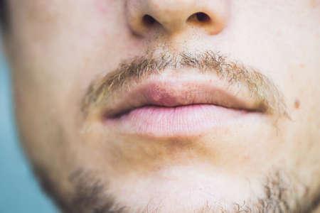 남성 립, 근접 촬영에 감염된 바이러스 포진입니다.