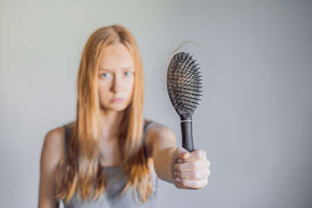 Hair loss in women concept. A lot of lost hair on the comb Stock Photo