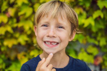 Pequeño niño sonriente mano apuntando su primer diente se cae