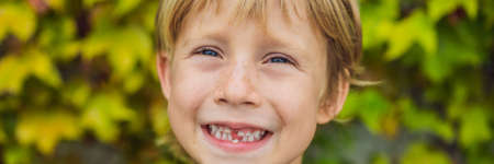 Little smiling child boy hand pointing his first tooth fall out Stock Photo