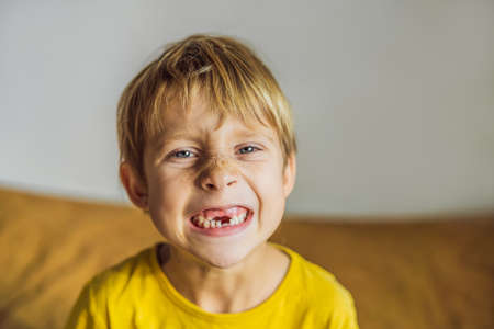 Litle caucasian boy shows that he lost his teeth