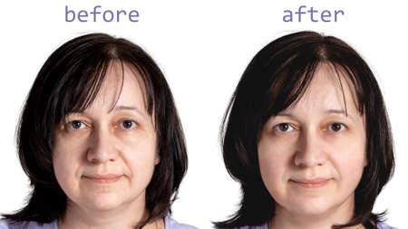 Face of a mature woman with dark hair before and after cosmetic rejuvenating procedures, isolated on white background