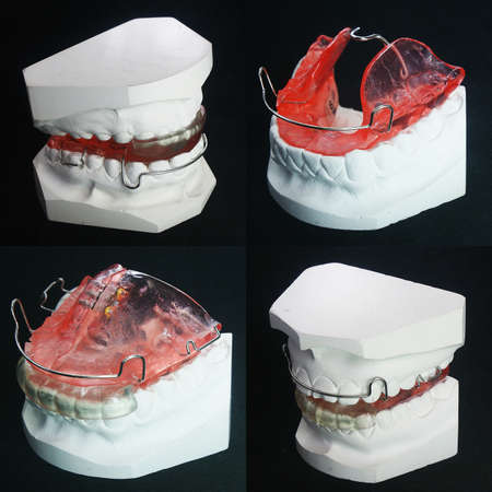 The image of dentures