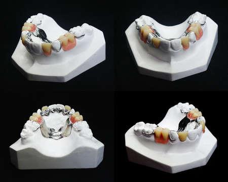 L'image des prothèses dentaires
