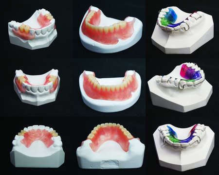 artificial teeth: The image of dentures