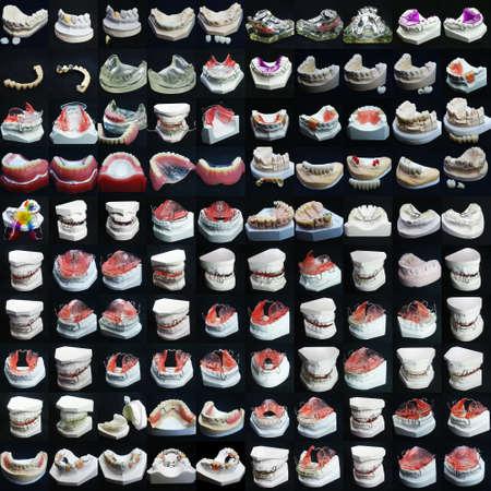prothese: Das Bild von Zahnersatz