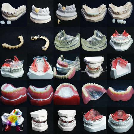 dentadura postiza: La imagen de dentaduras Foto de archivo