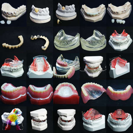 prosthesis: The image of dentures