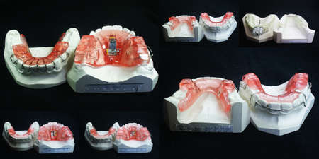 The image of dentures photo