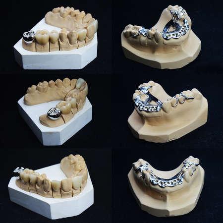 dentures: The image of dentures
