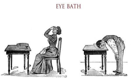 vintage illustration, eye bath for men and women (inexplicable sexual discrimination :-)