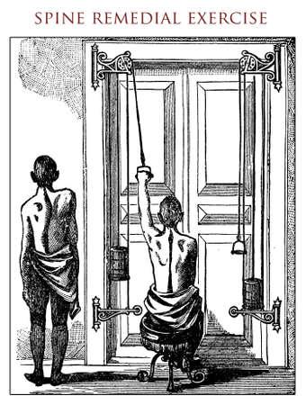 ailment: Spine ailment remedial exercise, vintage illustration Stock Photo