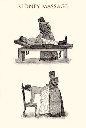 Kidney massage, vintage illustration