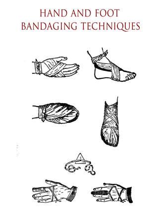 bandaging: Hand and foot bandaging techniques