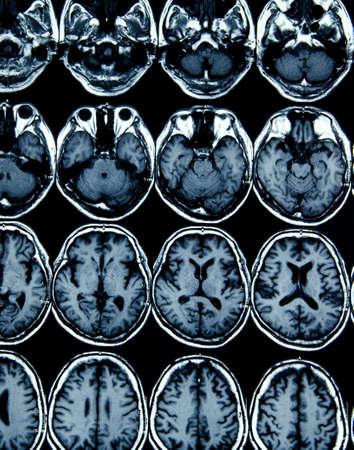MRI scan image of brain for diagnosis photo