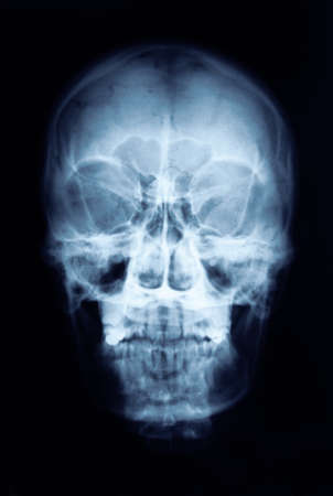 teeths: X-ray picture of the skull