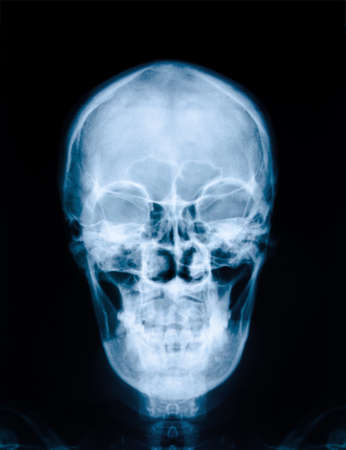 roentgenogram: X-ray picture of the skull
