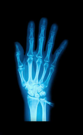X-Ray image of human hands and on device needle photo