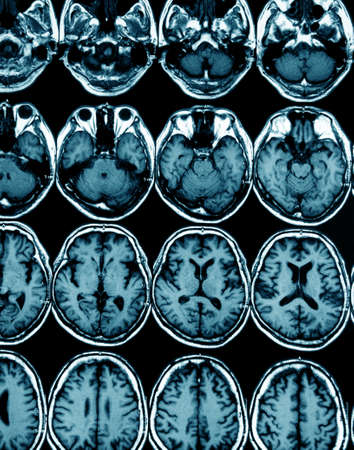x rays negative: MRI scan image of brain for diagnosis Stock Photo