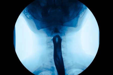 The image of x-ray upper gastrointestinal UGI, Esophagram use swallow Barium Sulfate method