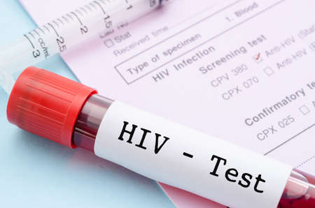 test: Sample blood collection tube with HIV test label on HIV infection screening test form.
