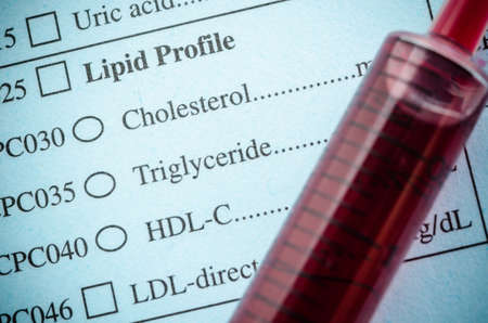 Medical check list Cholesterol, triglyceride and blood in synring. In the laboratory.