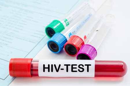 Blood sample for HIV test and empty tube blood for blood test screening with blank label on request form screening test. Stock Photo