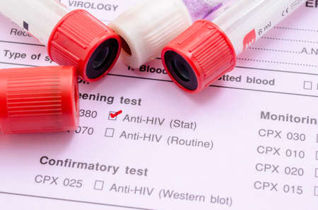 needle syringe infection: Sample blood collection tube with HIV test label on HIV infection screening test form.