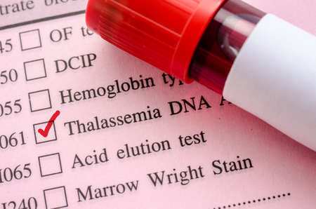 thalassemia: Sample blood in blood tube for Thalassemia DNA test on request form in laboratory.
