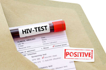 needle syringe infection: Blood sample with HIV test positive and request laboratory form on white background.