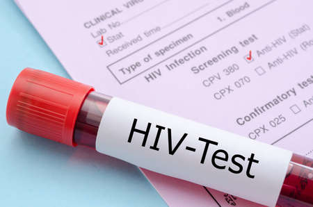 Sample blood collection tube with HIV test label on HIV infection screening test form.