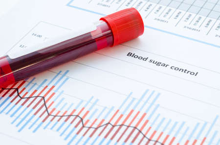 Sample blood for screening diabetic test in blood tube on blood sugar control chart. Reklamní fotografie - 51612157
