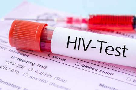 immunize: Sample blood collection tube with HIV test label on HIV infection screening test form.