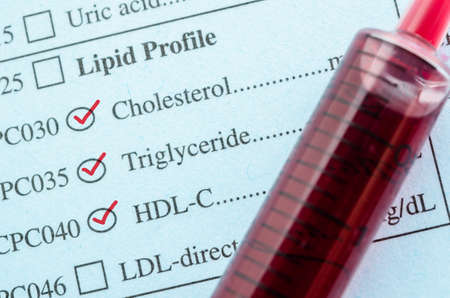 Red mark check on Cholesterol, Triglyceride and HDL-Con request form with blood sample in blood tube for test.