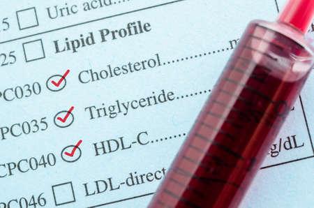 Rode markering controle op cholesterol, triglyceride en HDL-Con aanvraagformulier met bloedmonster in bloedbuis voor de test. Stockfoto
