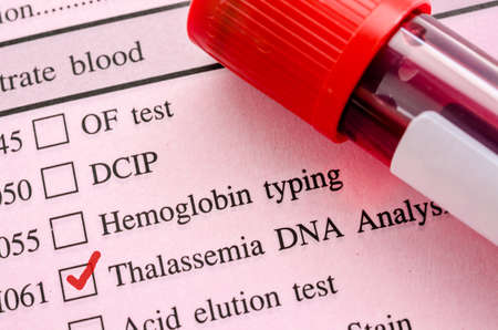 thalassemia: Red mark in screening form request for thalassemia DNA test with Blood sample in tube.