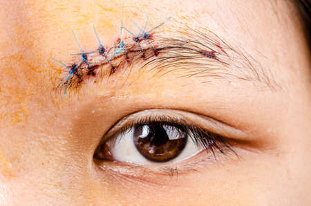 scar form stitched up skin after an operation with a blue fiber at eyebrow area Stock Photo