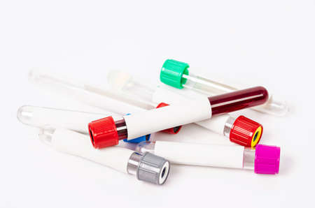 phlebotomist: vacuum blood tubes for collecting with blood samples use in laboratory on white background. Stock Photo