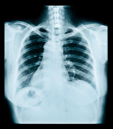 medical radiograph of thorax. ray, lungs, chest Stok Fotoğraf