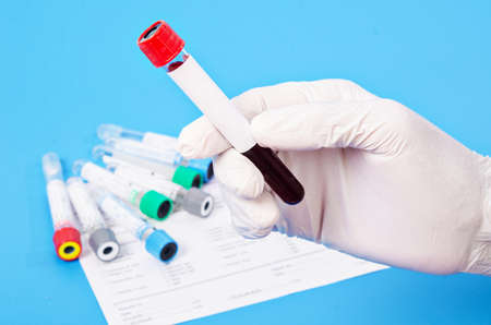 Hand holding Vacuum blood tubes for collecting blood samples in the laboratory.