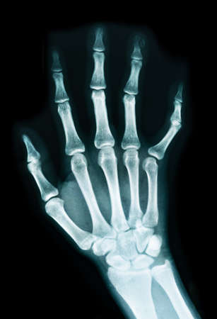 radiogram: X-ray of a human hand Stock Photo