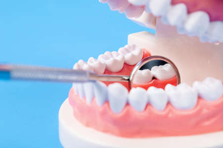 Tooth dental caries on denture with equipment dental on blue background. Stock Photo