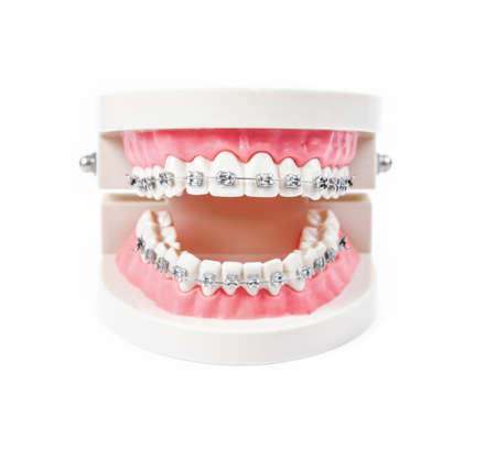 tooth model with metal wire dental braces isolated on white background.