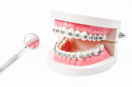 tooth model with metal wire dental braces and mirror dental equipment isolated on white background.