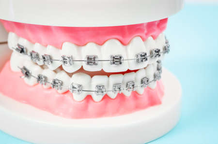 tooth model with metal wire dental braces on blue background. 免版税图像