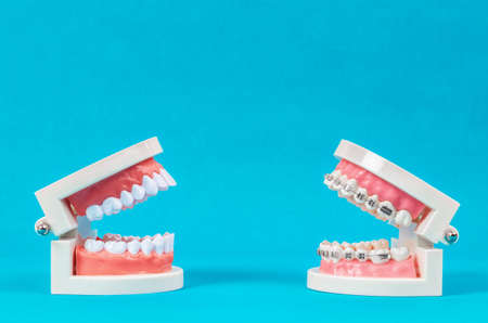 Compare tooth model and tooth model with metal wire dental braces on blue