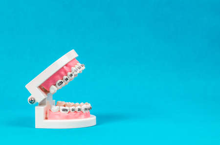 Tooth model with metal wire dental braces on blue  with empty space for your text or message. Stock Photo