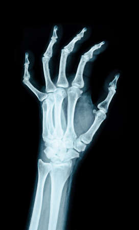 X-ray image of the hand on black background.