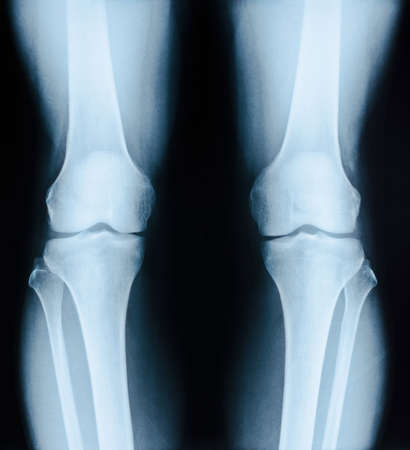 x-ray image patient with degenerative change of knee joint on black background. Stock Photo