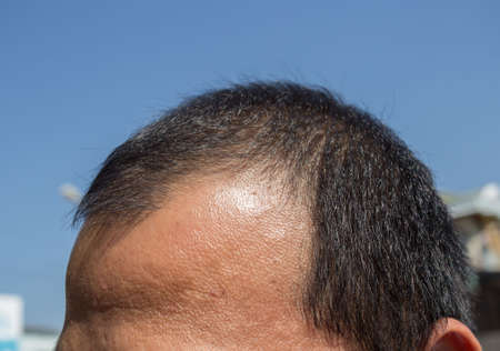 Middle-aged man concerned with hair loss. Baldness. Hair loss concept. Foto de archivo - 135231814